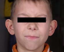 Remodeler son visage avec l'otoplastie